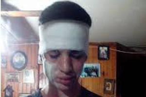 Un detenido por brutal asalto a jóvenes